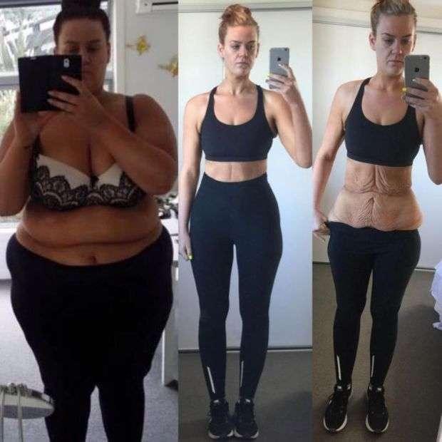 Схудла на 85 кг дівчина дала рішучу відповідь недовірливим користувачам мережі (5 фото)