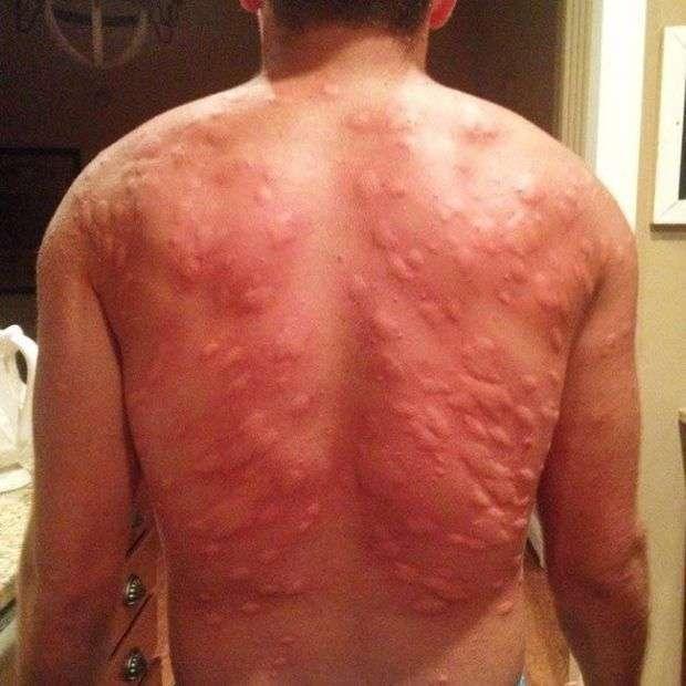 Наслідки укусів комарів (2 фото)