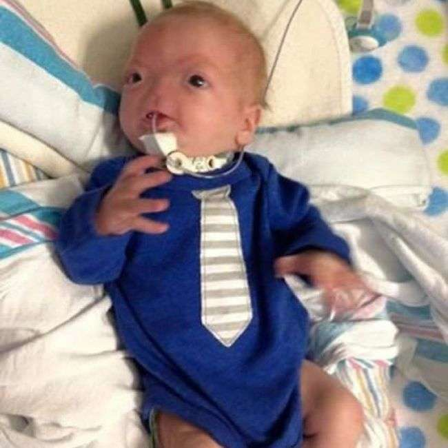 Елі Томпсон – милий 3-місячний хлопчик з відсутнім носом (12 фото)