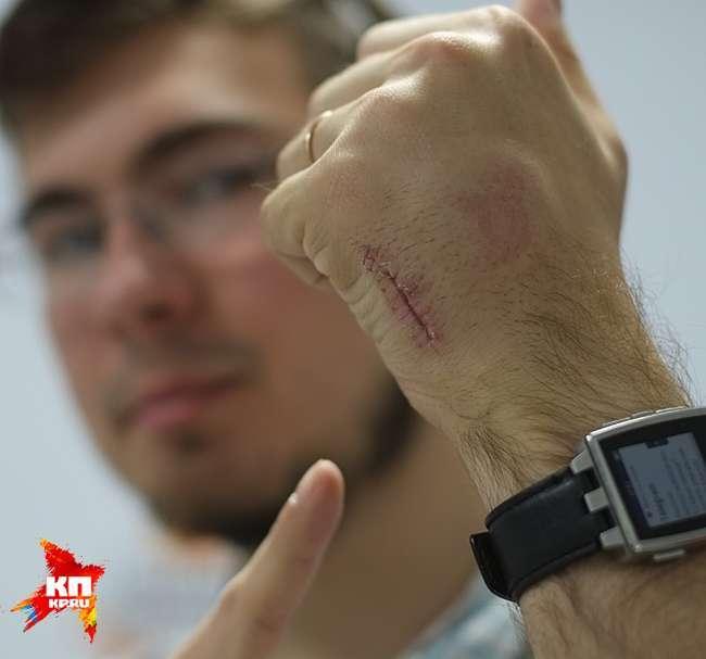 Молодий інженер імплантував собі в руку проїзний на метро (4 фото)